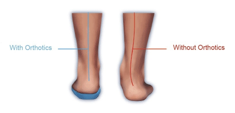 Orthotics-correct-alignment